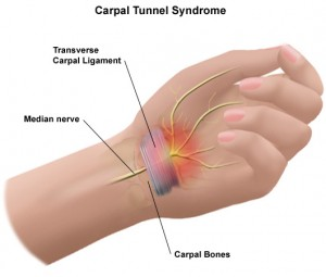 chiropractor for carpal tunnel syndrome